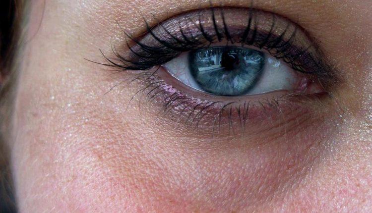 ده روش درمان سیاهی دور چشم
