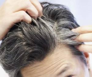 استرس و سفیدی مو
